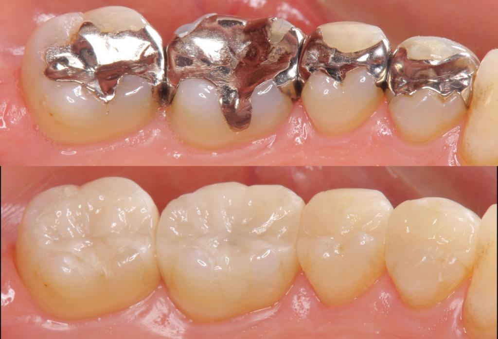白い歯の詰め物