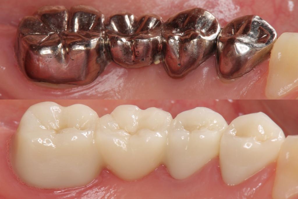 白い歯のかぶせもの