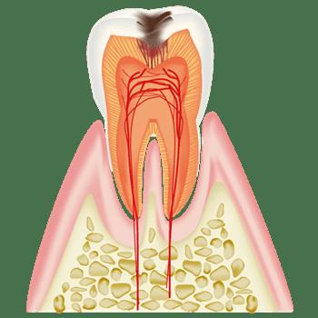 象牙質まで進行した虫歯
