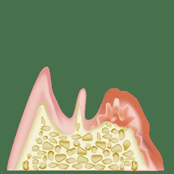 歯周病で歯が失われる