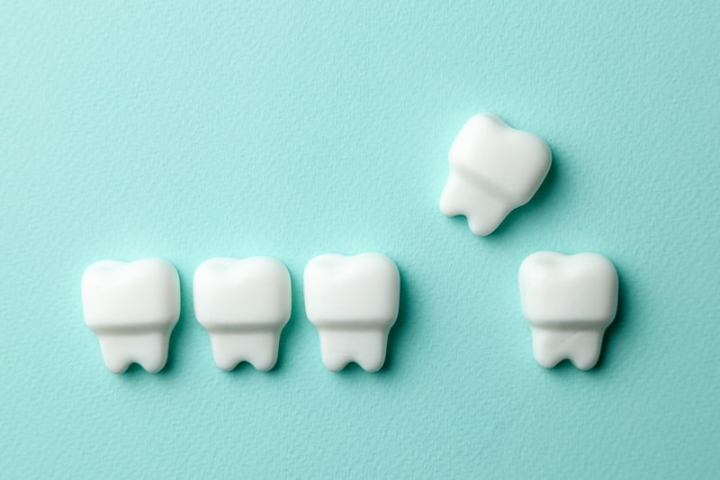 歯周病のイメージ